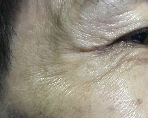 Ageing Skin Men 01