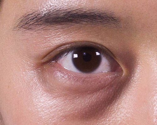 Dark-Eye