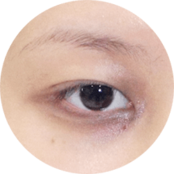 Eye Problem Areas image
