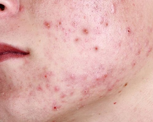 Pimples-Consequences