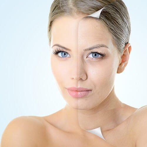 Aging skin image