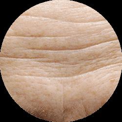 Ageing Skin image