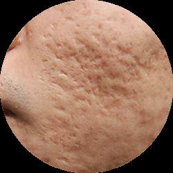 Pimples/ Acne image
