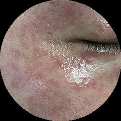 Sensitive Skin image