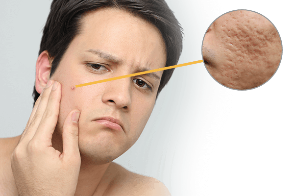 pimples acne new york skin solutionspimples acne skin problems image