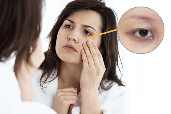 Skin Problems image