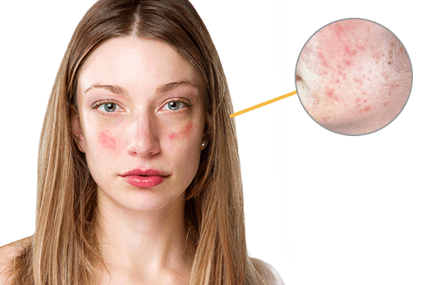 Skin Problems image