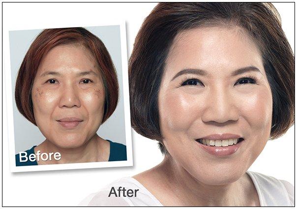 Ageing_Skin