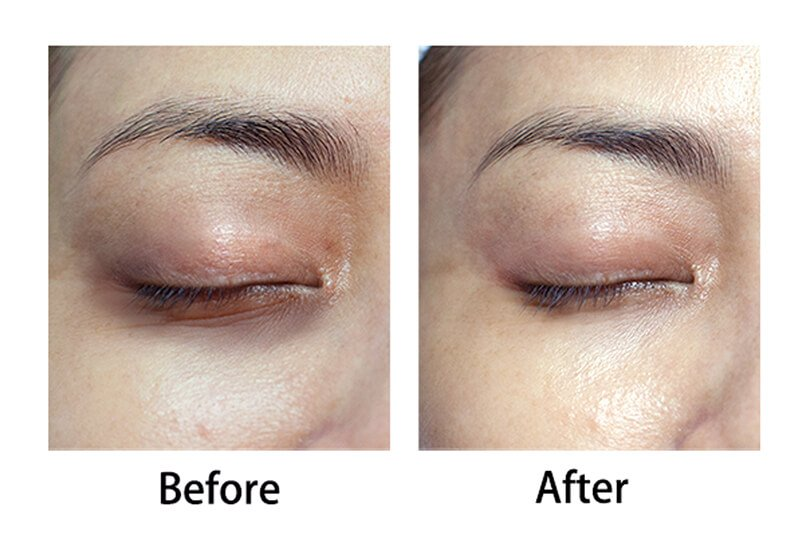Eye Problem Area